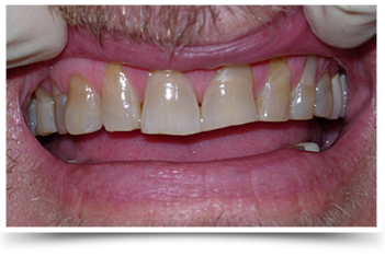 dentist before and after photos greensboro